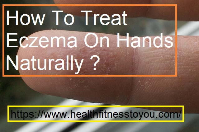 How To Treat Eczema On Hands Naturally ?