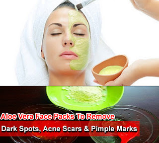 Aloe Vera Face Packs to Remove Dark Spots, Acne Scars And Pimple Marks