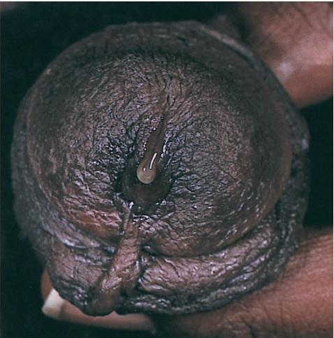 urethritis herpes