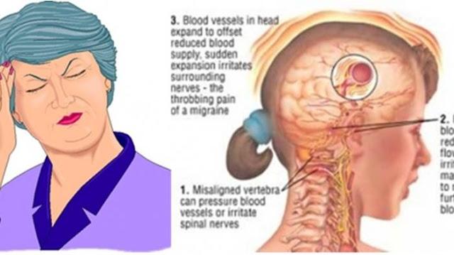 Cara Sederhana Meringankan Sakit Kepala