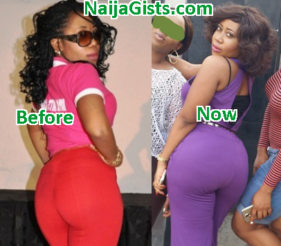 moyo lawal butt implants surgery