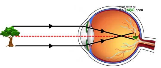 skema diagram mekanisme jalannya sinar cahaya pada mata normal manusia, proses pembentukan bayangan