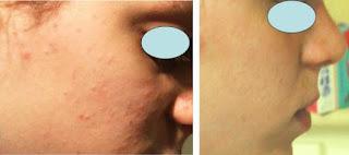 crema para acne resultados