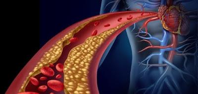 Comment Réduire le Taux de Cholestérol avec Cette Substance Naturelle