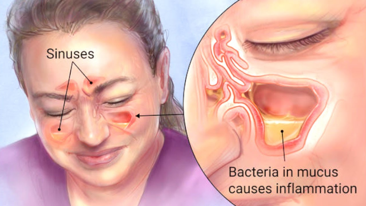 Get Rid Of Your Sinus Infection (Sinusitis) With This Ingredient In Your Kitchen