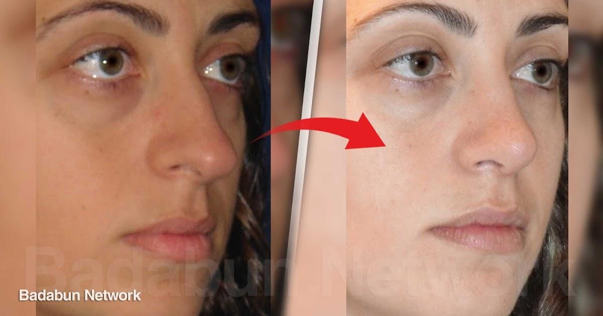piel aclarar tono remedios belleza estilo