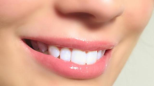 Gigi Putih Alami Hanya Dengan Cuka Apel