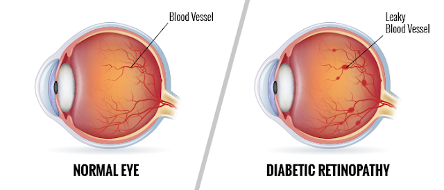 Diabetic Eye Diseases – Silent Stealers of Light