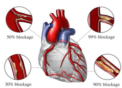 Classification of Coronary Artery diseases
