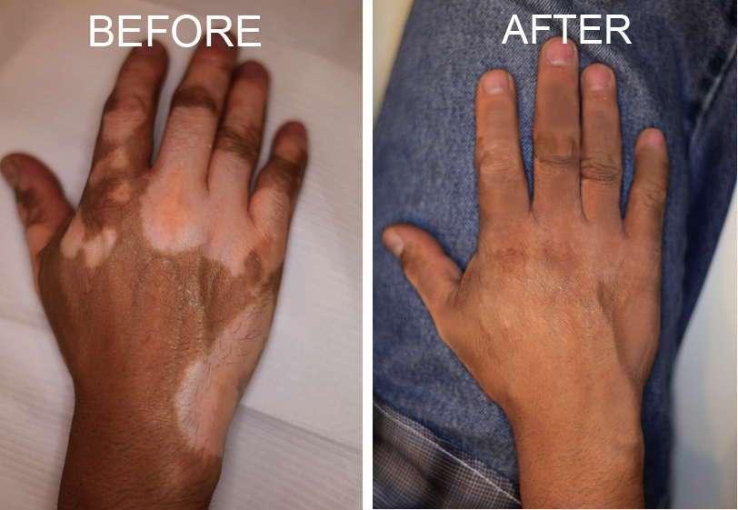 Cara Menghilangkan Bercak Putih Vitiligo