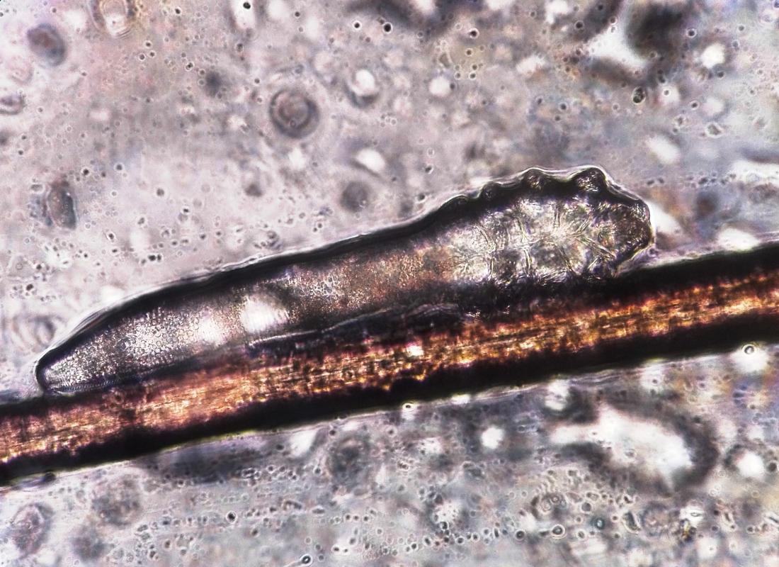 images-facial-demodex-mites