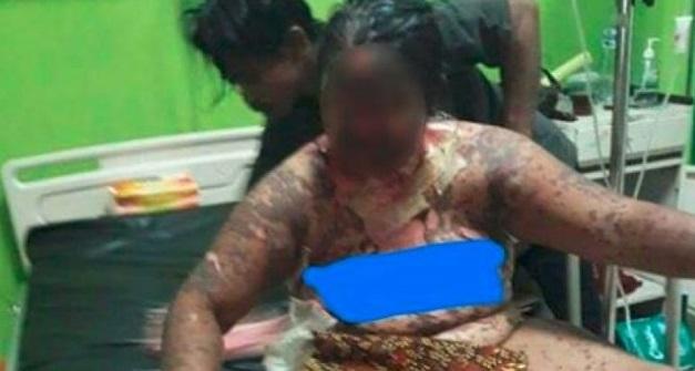 Tubuh Wanita Melecur Akibat Keracunan Ubat Hospital