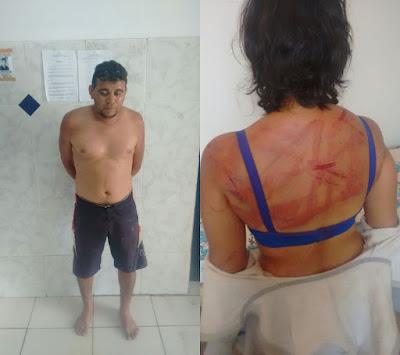 Violência: Mulher é espancada e torturada pelo companheiro em São Bernardo do MA