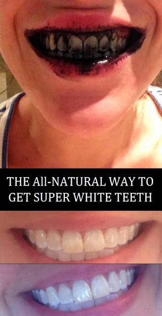 The All-Natural Way To Get Super White Teeth