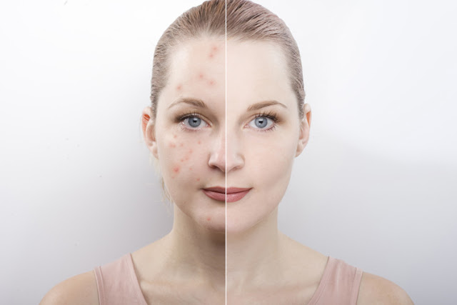 A few realities about acne  Treatment of acne The Acne Cure through an All encompassing Methodology