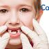 乳牙蛀牙,換牙就沒事?破解蛀牙三個迷思
