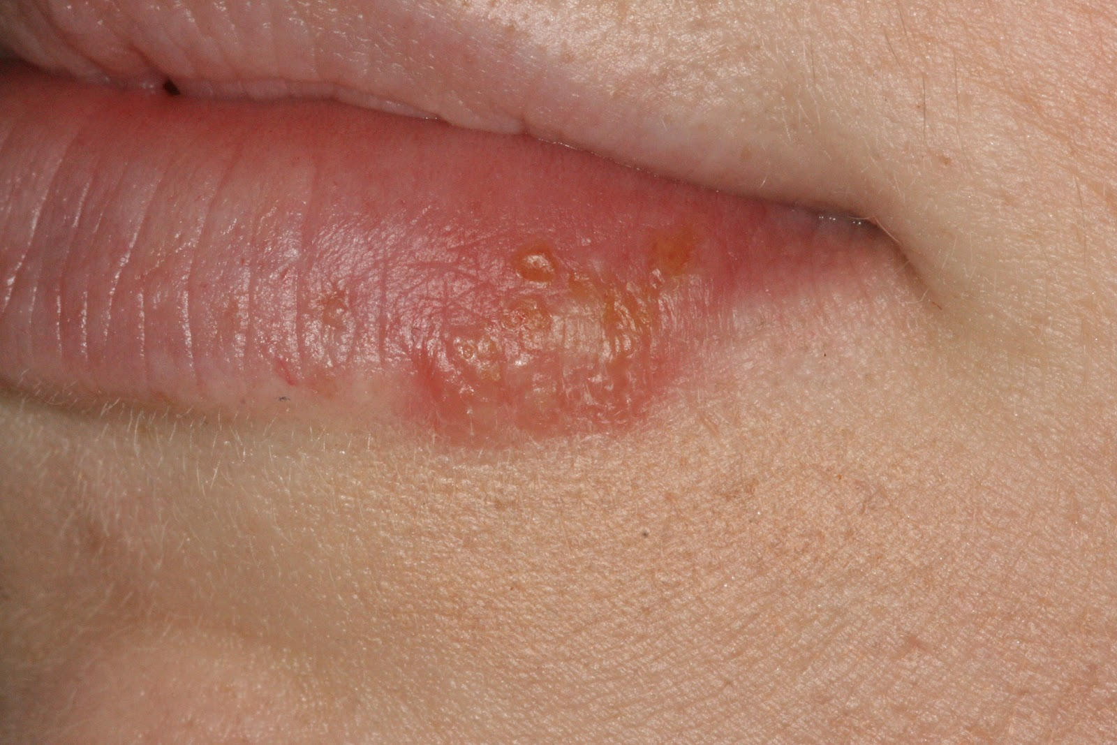 Natural Cure Hpv Infection