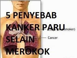 5 Penyebab Penyakit Kanker Selain Merokok