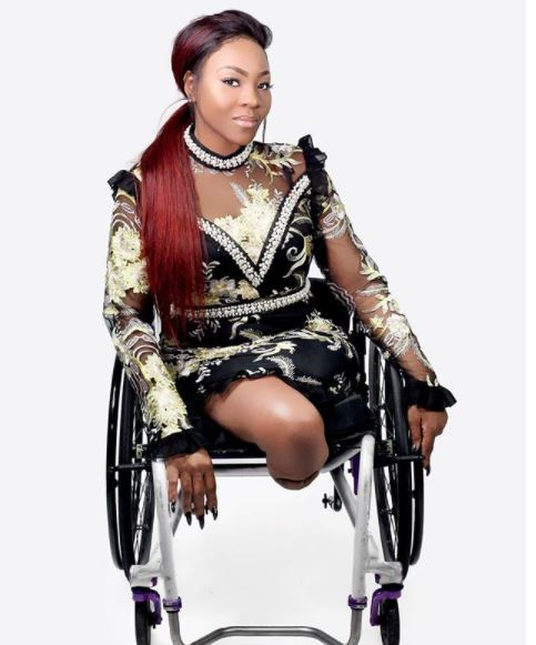 black-american-lady-who-has-no-leg