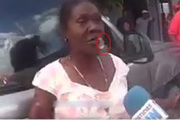 Luapkan Emosi Saat Diwawancarai, Gigi Palsu Wanita Ini...