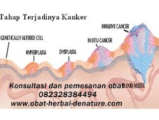 obat kanker herbal,obat kanker stadium 3,obat kanker stadium akhir,obat kanker payudara,obat kanker serviks,obat kanker otak,obat gejala kanker,cara mengobati kanker tanpa kemoterapi