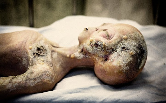 The-truth-of-Roswell-Alien-Autopsy-video...193475.jpg