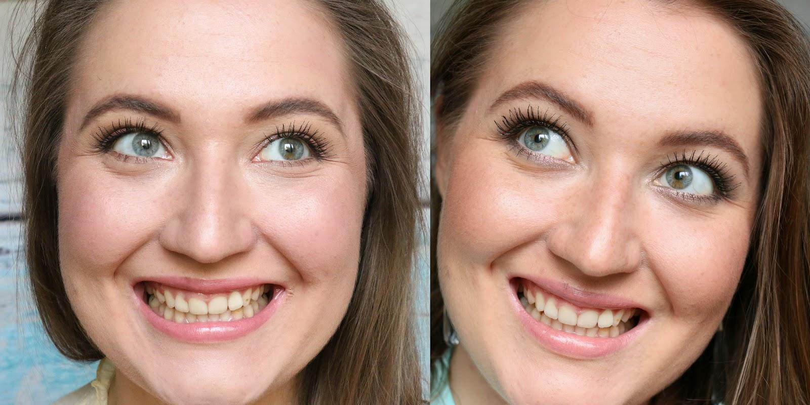 отбеливание зубов в клинике форум