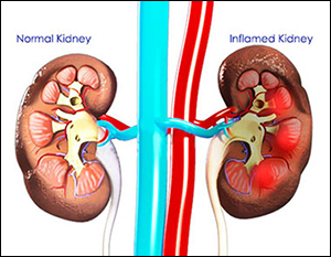 nephritis, inflammation of glomerulus, swelling of glomerulus, inflammation of the kidney, types of nephritis