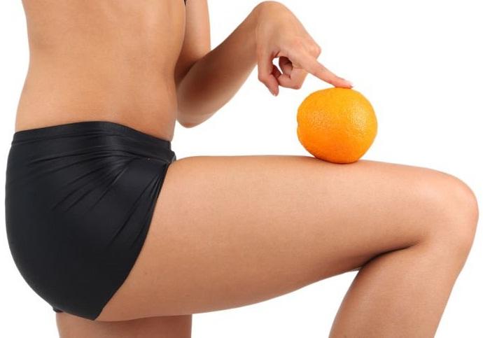 como eliminar las celulitis de las piernas y gluteos remedios caseros