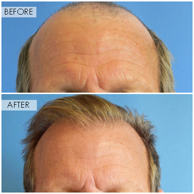Best Hair Transplant In Boston, Ma  Revive Hair. Toilet Paper Bears Commercial. Methadone Addiction Symptoms Web Based Erp. Masters Of History Online Uic Online Programs. Revocable Living Trust Taxes. Should I Refinance Mortgage Porsche Vs Bmw. Anoka Ramsey Community College D2l. Roofing Contractors Albuquerque. Document Management Gartner Egg Donation Ny