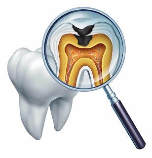 stratégies de prévention de la carie dentaire