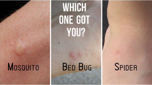 I Think I Have A Bed Bug Bite
