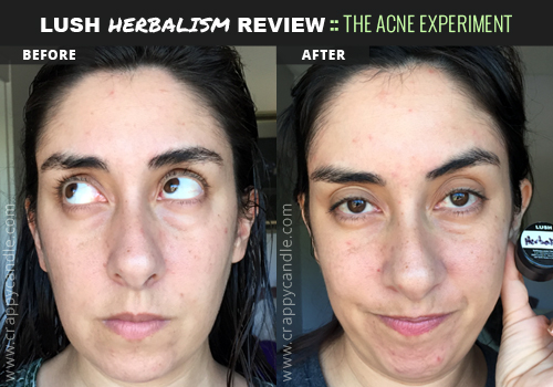 Lush Herbalism Before and After - The Acne Experiment