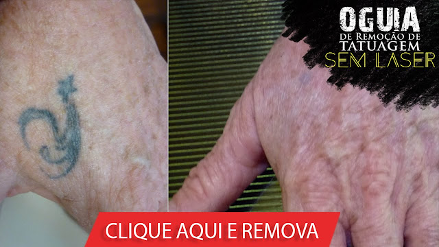 o-guia-de-remocao-de-tatuagem-sem-laser