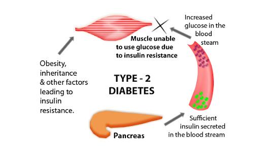 diabetes mellitus symptoms risks and treatment options