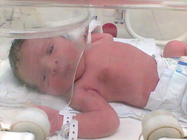 Bebê na UTI