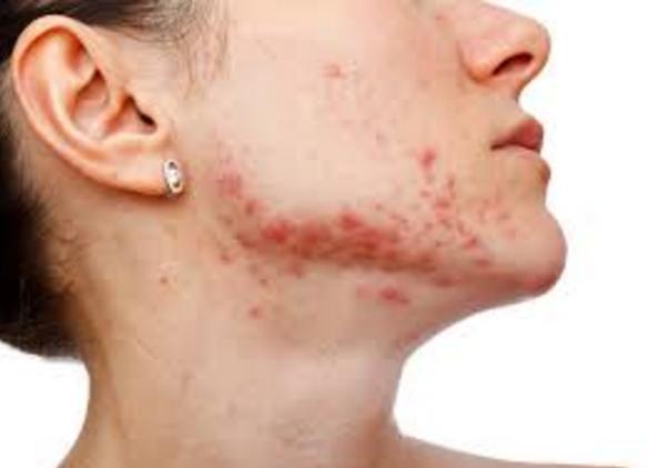 What Causes Acne Vulgaris Acne Vulgaris Blog