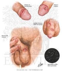 cara mengobati gejala penyakit sipilis