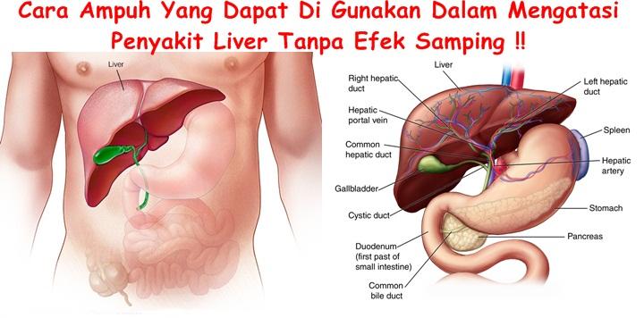 Obat Tradisional Liver Ekstrak Teripang
