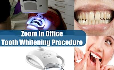 tẩy trắng răng tại nha khoa có mấy loại -5