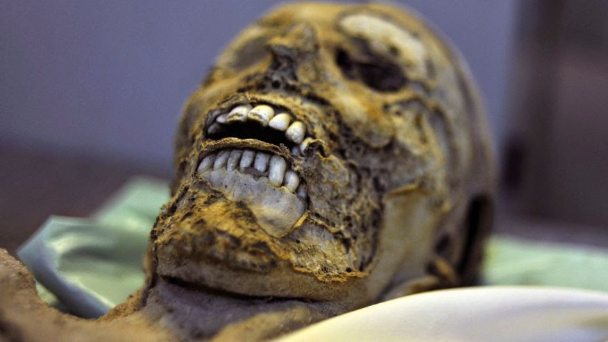 Mummies from Hungary reveal TB's Roman lineage