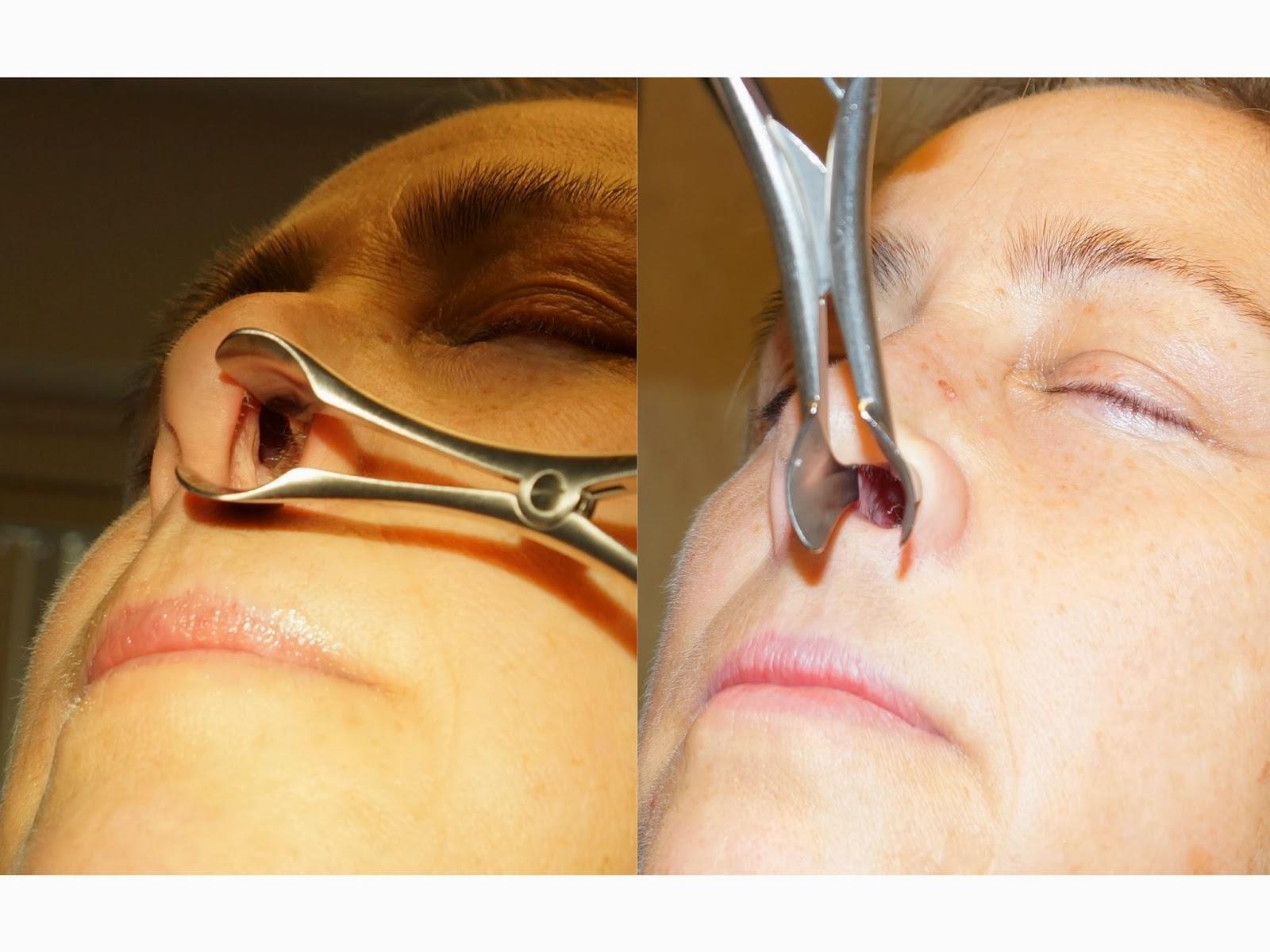 Facial Plastic Surgery: Septal Perforation Repair