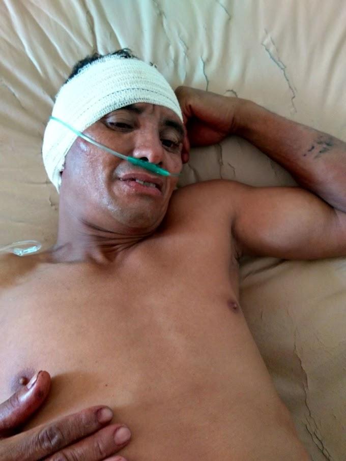 Assaltante que roubou moto em Anapurus é baleado e Preso após perseguição em Chapadinha