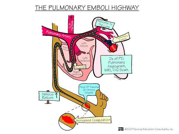 Pulmonary Emboli Highway