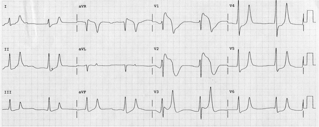 Dr. Smith's ECG Blog: Right Bundle Branch Block with ST