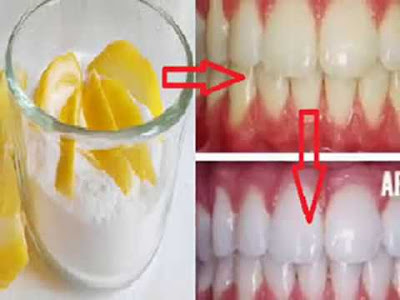 Cara-memutihkan-gigi-dengan-baking-soda