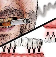fumar implantes dentales, implante dental complicaciones