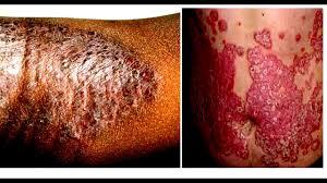 Obat Kulit Gatal Berair, Kering Akibat Jamur dan Alergi