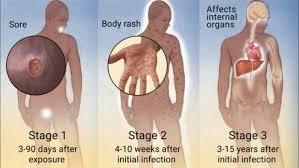 Tahapan Fase Penyakit Sipilis