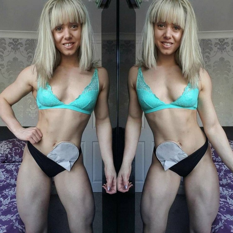 Zoey Wright - Her chronic illness transforms it into bodybuilder